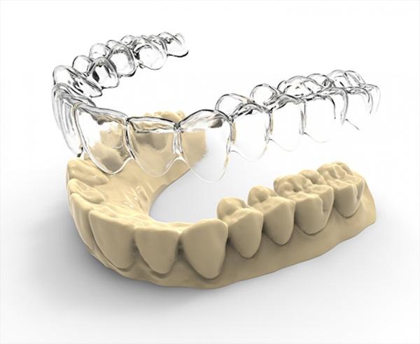 Niềng răng bằng khay Vinalign có xuất xứ từ Việt Nam