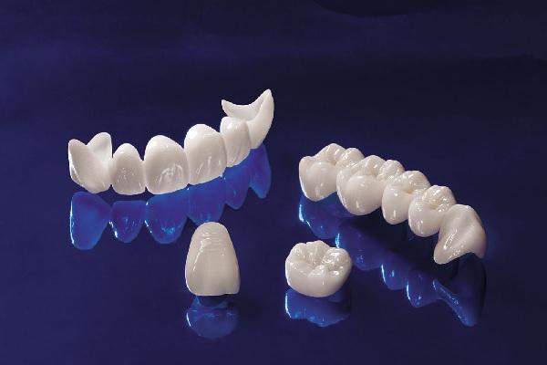 Phương pháp bọc răng sứ Ceramill