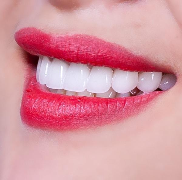 Răng sứ Ceramill mang tính thẩm mỹ cao