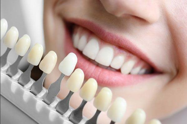 Phương pháp trồng răng sứ Ceramill là gì? Giá bao nhiêu?