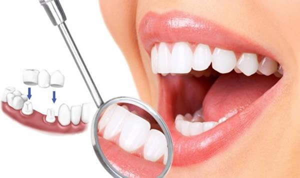 Những đặc điểm vượt trội của trồng răng sứ Ceramill