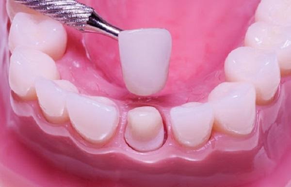 Các bước thực hiện phương pháp trồng răng sứ Ceramill