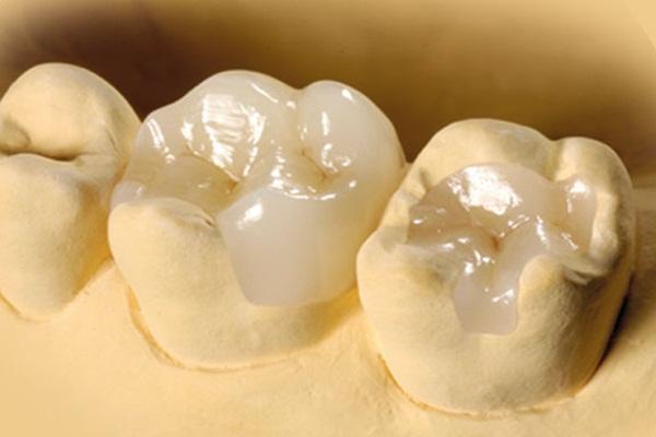 Trám răng Inlay/Onlay sứ là gì?