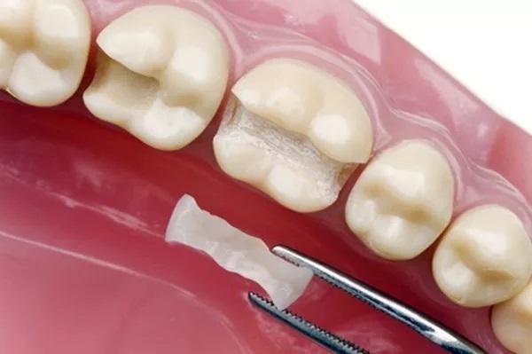 Khi nào cần trám răng Inlay/Onlay sứ?
