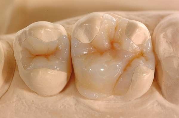 Ưu điểm của trám răng Inlay/Onlay sứ là tính thẩm mỹ cao
