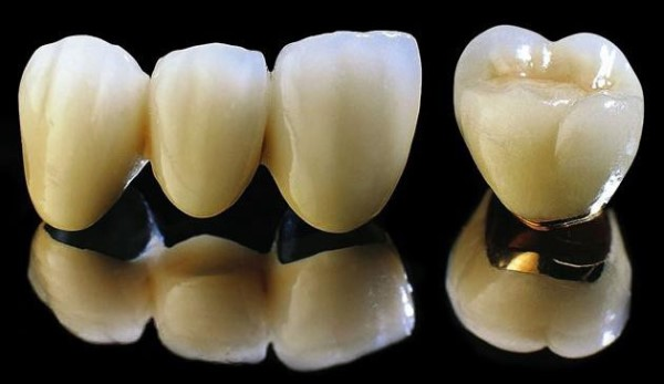 Răng sứ kim loại thường có lõi Cr-Co/Cr-Ni