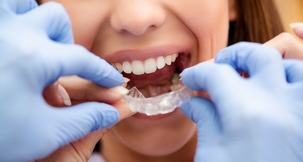 Thời gian mang niềng hoàn toàn có thể dài hơn nếu tình trạng răng xấu