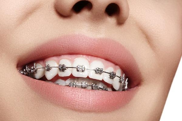 Khi nào nên Niềng răng bằng mắc cài kim loại tự buộc?