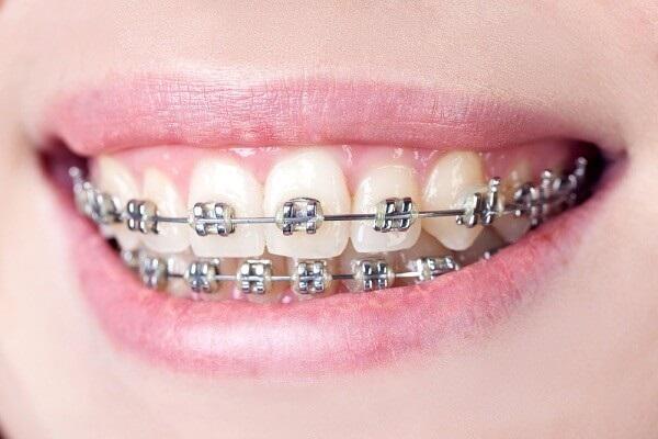Chi phí Niềng răng bằng mắc cài kim loại tự buộc
