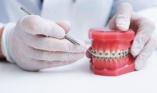Niềng răng bằng mắc cài kim loại được nhiều người lựa chọn sử dụng