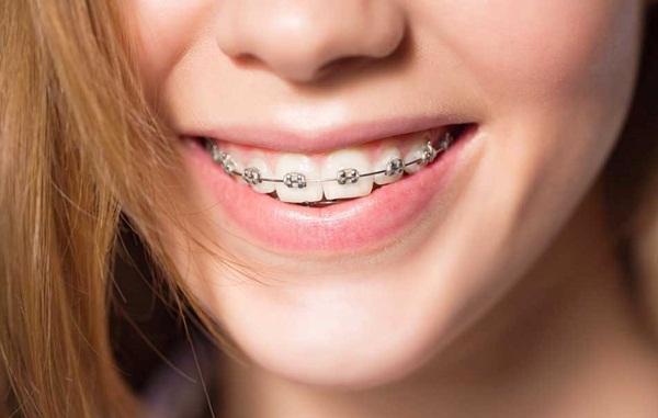 Niềng răng bằng mắc cài kim loại có thể khắc phục được một số lỗi chỉnh nha khó