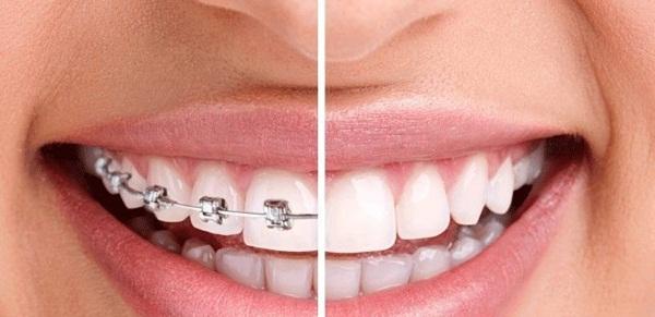 Niềng răng có mắc cài mang đến hiệu quả chỉnh nha rõ rệt