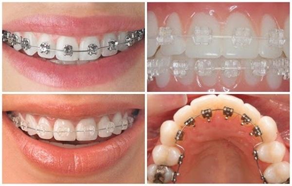 Các phương pháp niềng răng thông dụng