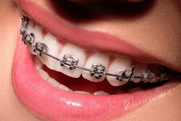 Tùy vào tình trạng răng mà thời gian sẽ dao động trong khoảng 1 – 3 năm