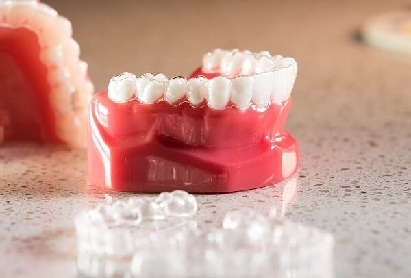 Niềng răng không mắc cài là lựa chọn của đông đảo người dùng