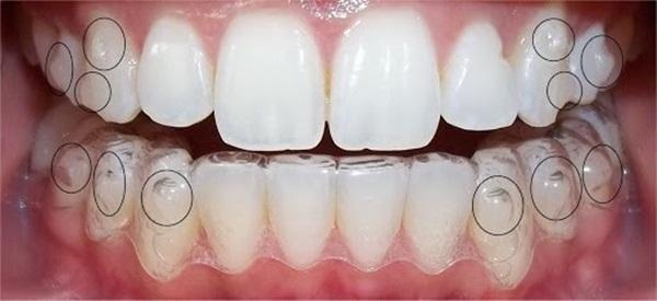 Nếu đang sở hữu một bộ hàm không mấy đẹp thì bạn có thể cân nhắc phương pháp này nhé!