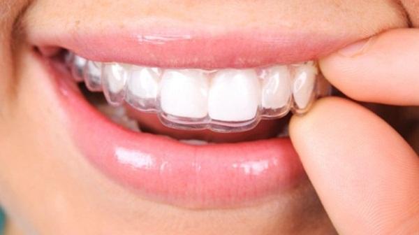 Lưu ý: quá trình niềng răng không mắc cài chi tiết có kèm báo giá sẽ được tư vấn cụ thể khi bạn lựa chọn dịch vụ tại Art Dentist.