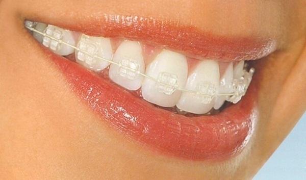 Niềng răng bằng mắc cài sapphire tự buộc là gì?