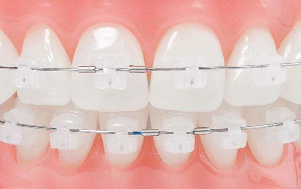Niềng răng bằng mắc cài Sapphire nên hay không nên?