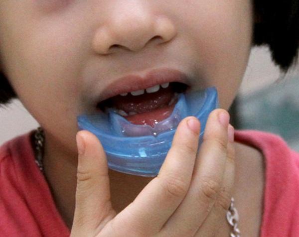 Niềng răng cho trẻ bằng hàm tháo lắp có tốt không