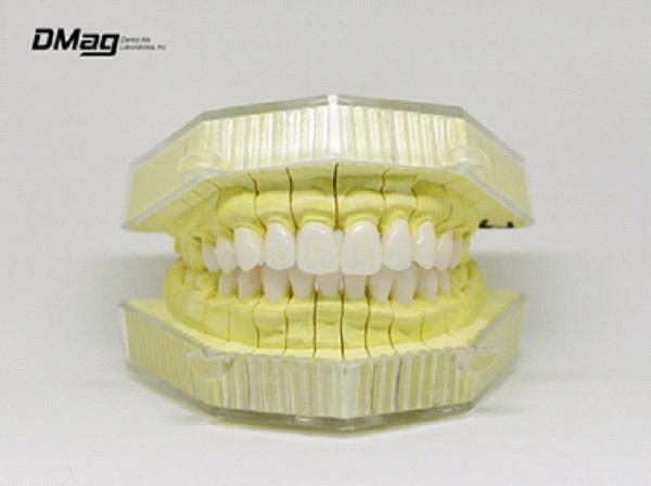 Hình ảnh răng sứ D-Mag