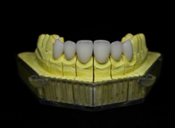 Tuổi thọ của răng sứ D-Mag là bao nhiêu?