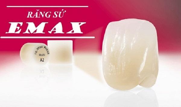 Răng sứ Emax và những điều cần lưu ý
