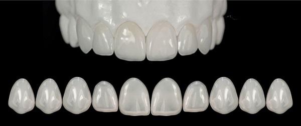 Nước Đức là nơi sản xuất loại răng sứ này