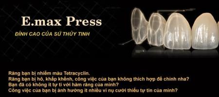 Emax Press – đỉnh cao của sứ thủy tinh