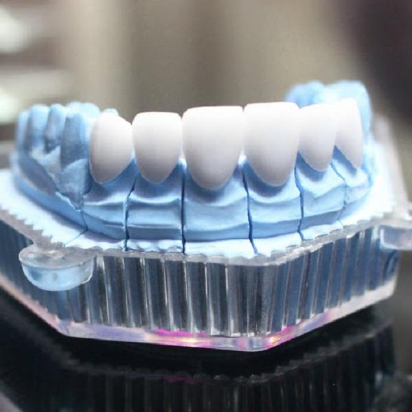 Bản mẫu răng sứ HT Smile Full
