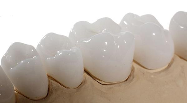 Giá thành là ưu điểm lớn nhất của dòng răng toàn sứ Venus