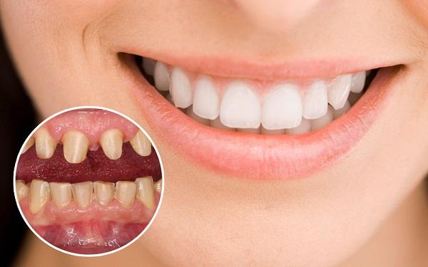 Hình ảnh trước và sau khi làm răng toàn sứ Venus