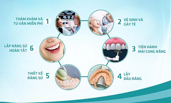 Quy trình bọc răng sứ thẩm mỹ tại các nha khoa uy tín.