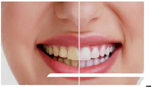 Răng bị đổi màu thì nên sử dụng giải pháp dán mặt sứ