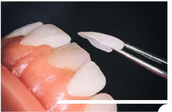 Quy trình làm mặt dán sứ tại Nha khoa Art Dentist