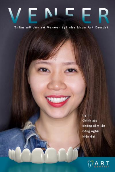 Nha khoa Art Dentist – phòng khám nha khoa uy tín tại Hà Nội