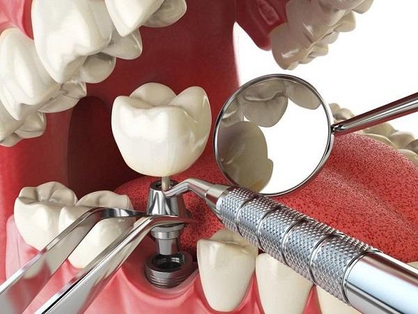 Cấu tạo khi trồng răng Implant hoàn chỉnh như thế nào?