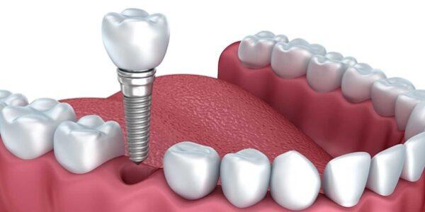 Những ưu điểm nổi bật của trồng răng Implant