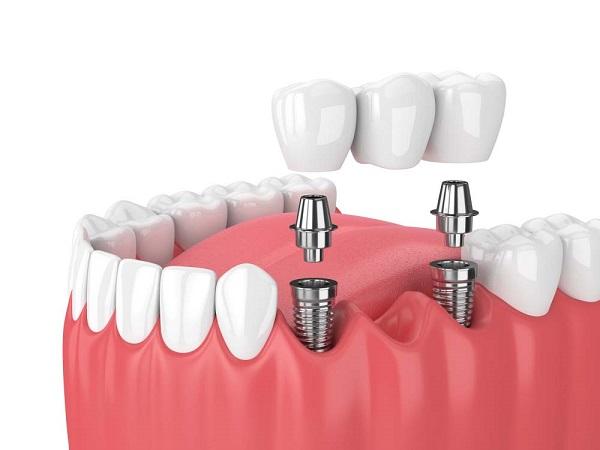 Quy trình trồng răng Implant diễn ra thế nào?