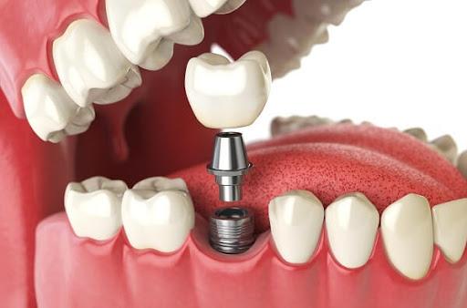 Chi phí khi trồng răng Implant