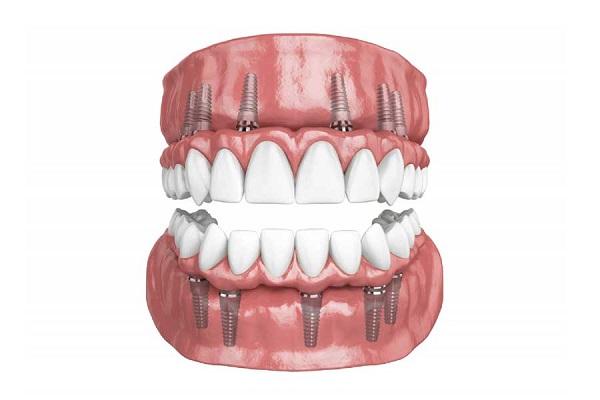 xương, nâng xoang. Những lí do phổ biến ảnh hưởng đến quá trình cấy ghép răng implant.