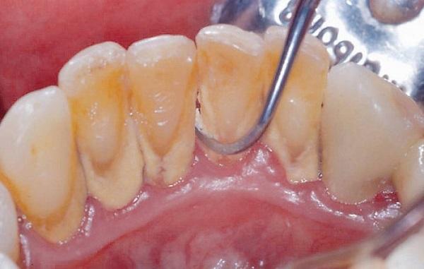 Lớp cao răng không cạo có ảnh hưởng đến răng không?