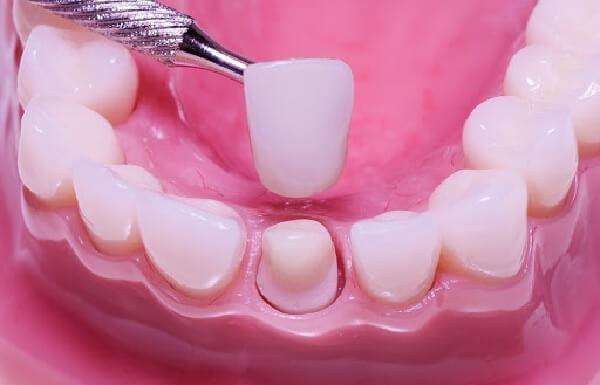 Trước khi bọc răng sứ cần phải mài đi phần men răng thật