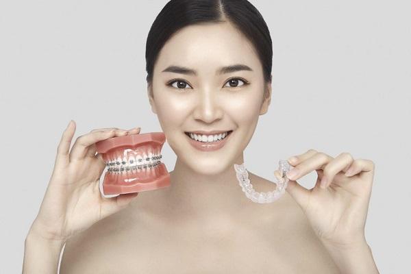 Cải thiện cho răng miệng khỏe hơn nhờ niềng răng trong suốt