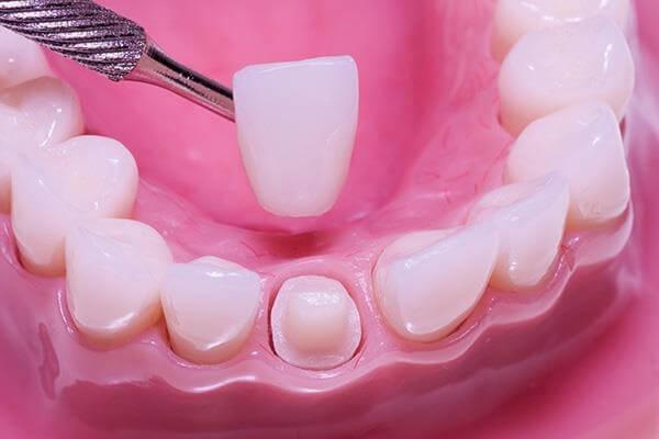 Có nên bọc răng sứ cho trẻ em không ?