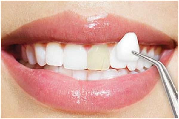 Bảng báo giá răng sứ veneer mới nhất 2020