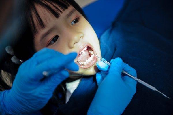 Tiến hành tráng răng miệng, ngăn chặn sự phát triển của sâu răng