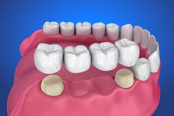Những tình trạng nào bác sĩ khuyên nên bọc răng sứ?