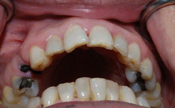 Sâu răng gây vàng răng