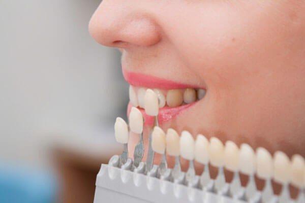 Biến chứng không thể xem thường có thể xảy ra khi bọc răng sứ
